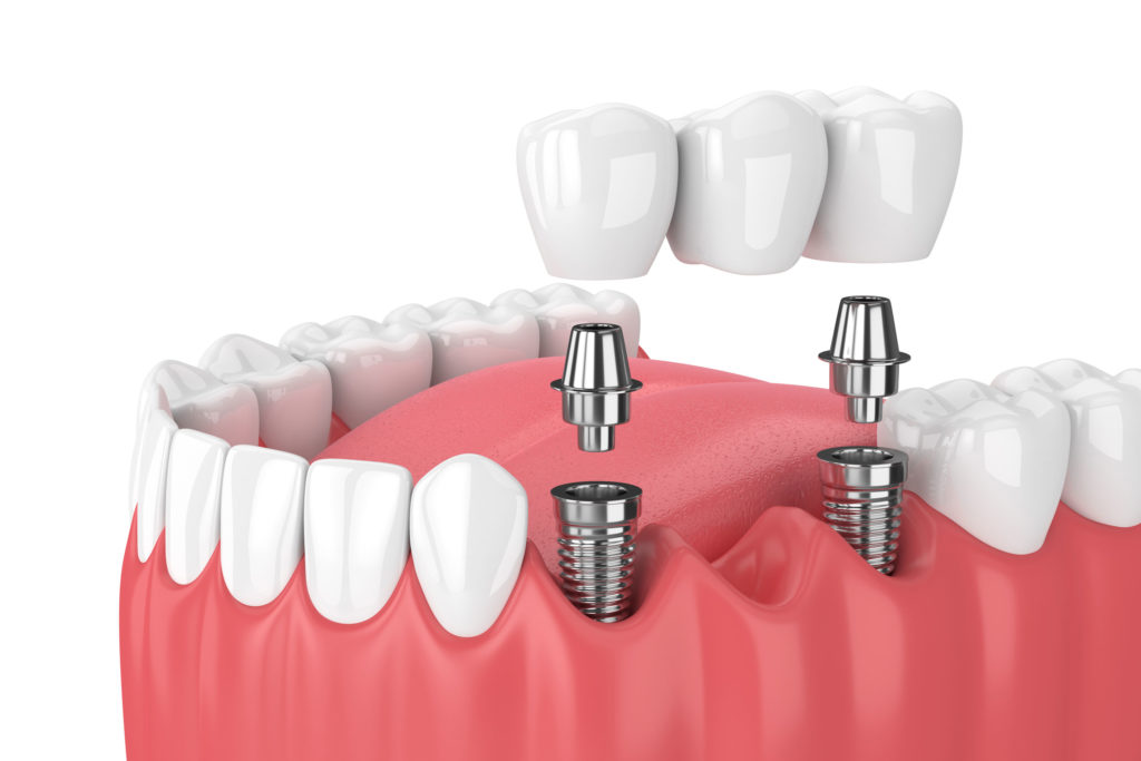 Bridge Dental Implant